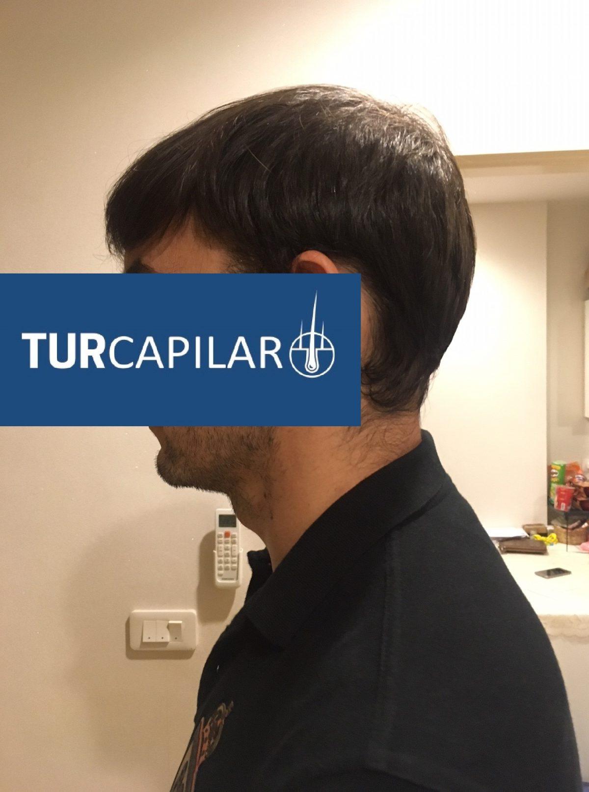 Trasplante capilar antes y después: 4 meses del trasplante capilar en Turquía