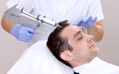 mesoterapia capilar turcapilar